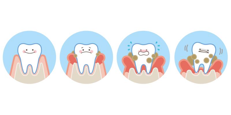 Parodontitistherapie